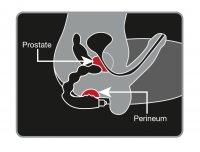 Prostata-Vibrator mit Lustkugeln Skizze