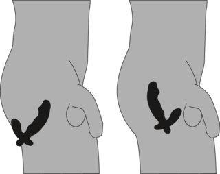 Prostata-Vibrator in Penisform