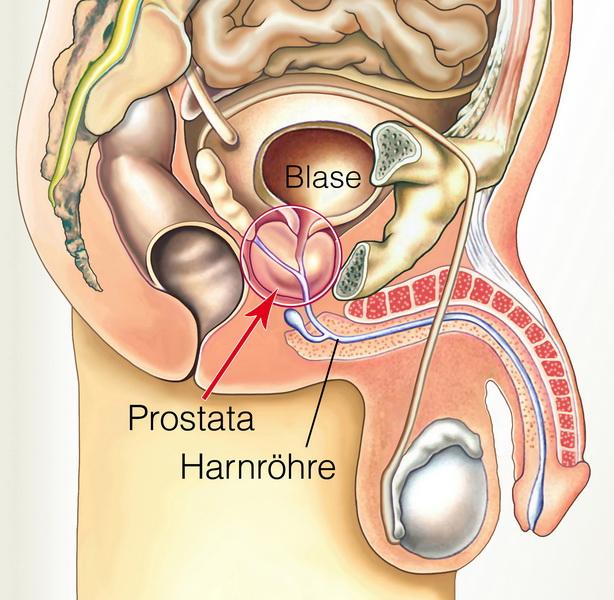 Prostata-Massage-Zeichnung